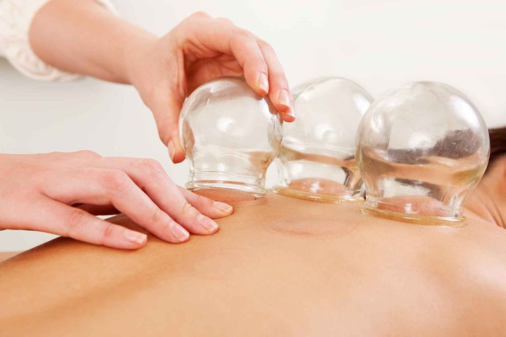 cupping-massage-therapy-featured